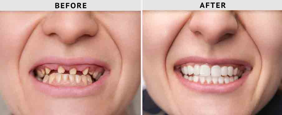 Full Mouth Reconstruction with Implants in Tijuana