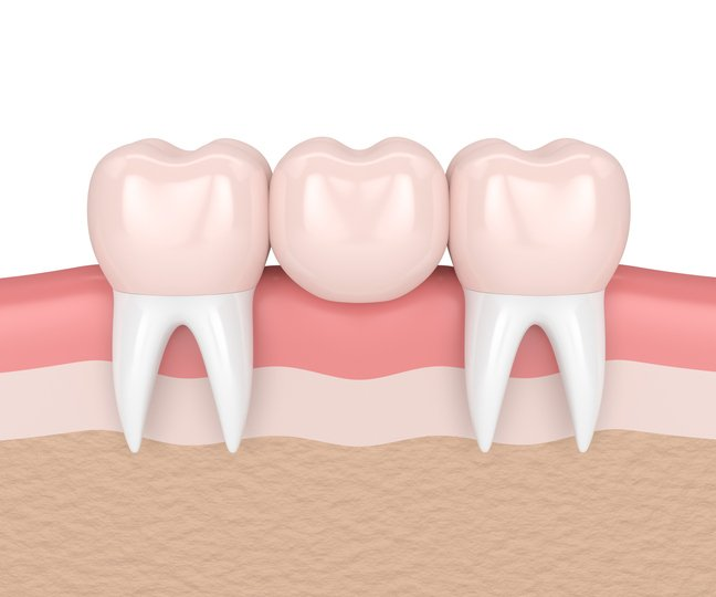 Dental Bridge vs Tooth Implant – Which is Better?