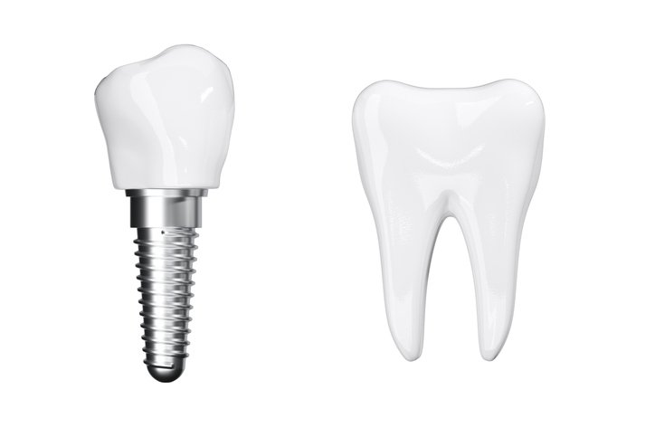 Ceramic Dental Implants vs Titanium
